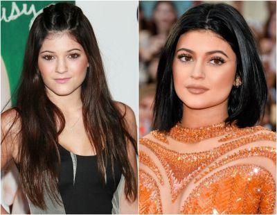 Kylie Jenner, dezvaluirea pe care fanii au asteptat-o din 2014. Adevarul despre buzele ei - www ...