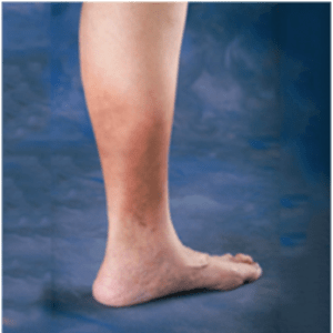 Tired  heavy legs may indicate CVI   Health24 leg health