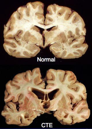 From Sacks to Suicidality: Chronic Traumatic Encephalopathy | Psychology Today