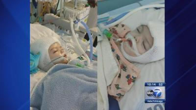 Formerly conjoined twins Jadon, Anias say 'dada' in latest video | abc13.com