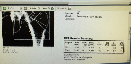 Hip Scan Fit Osteoporosis Trial