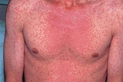 Scarlet fever infects PA high school | EAGnews.org
