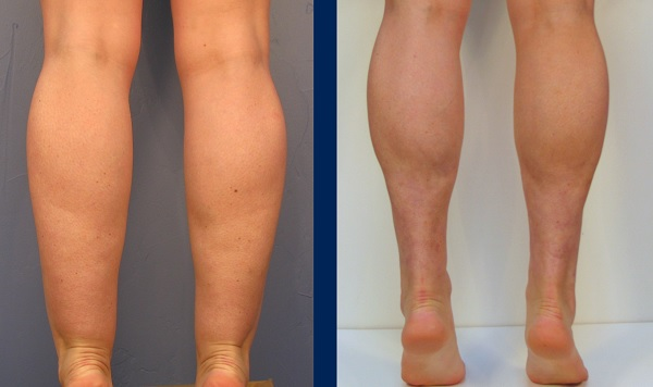 How to Get Rid of Cankles Fast        Get Skinny Ankles without surgery get rid of cankles