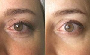 Radiofrecuencia Facial ® - Antes y Después (con FOTOS)
