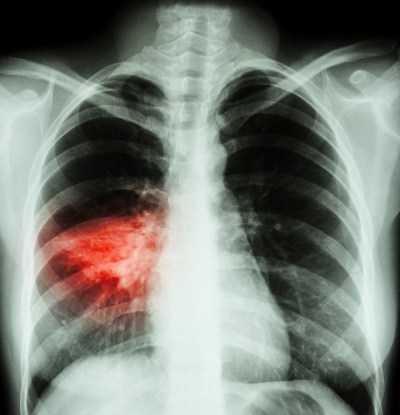 Intravenous-to-Oral Antibiotics Transition in Healthcare-Associated Pneumonia Safe
