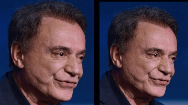 Blog do Barão- Álvaro Dias vai criar a Bolsa Botox
