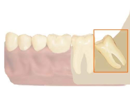 Что делать, когда выпадают зубы
