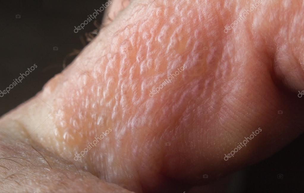 Poison Ivy Rash     Stock Photo      ezumeimages  128395618 Close up macro poison ivy rash blisters on human skin     Photo by ezumeimages