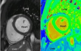 More Secure, Speedier Heart Filters in Perspective