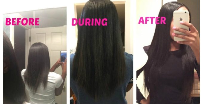 biotin for hair growth before and after