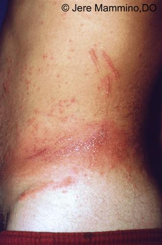 Poison Ivy Dermatitis   American Osteopathic College of Dermatology     The