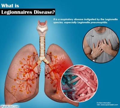 What is Legionnaires Disease|Signs|Symptoms|Treatment|Pathophysiology