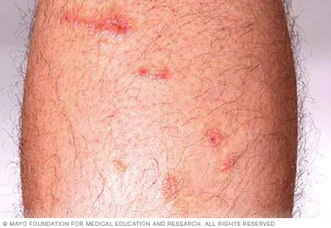images for poison ivy rash