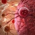 Plantas para prevenir el cáncer, alimentación sana contra la enfermedad