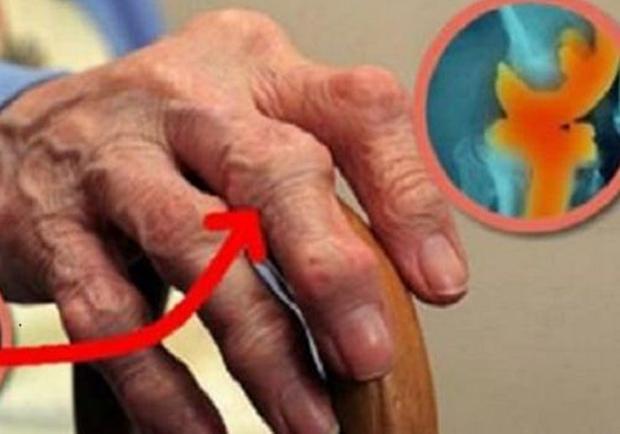 Ova žena je eliminisala bol u zglobovima i koljenima u jednom danu bez odlaska doktoru, a koristila je OVO!