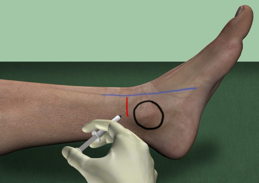 Saphenous Nerve Block Ankle