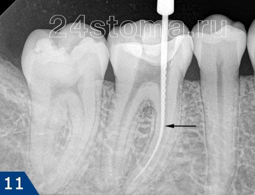 Se til-fil (specificeret af pilen) i tandens rodkanal