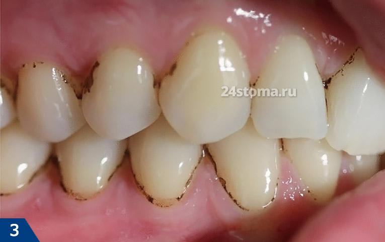 Donkere overval op de tanden in de roker (+ bacteriële bloei, + resistente verandering in de kleur van enkele emaille secties)