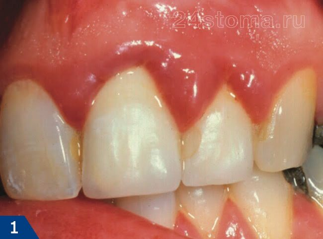 歯肉形の歯肉形 - ガムの鋭い腫れと発赤がある