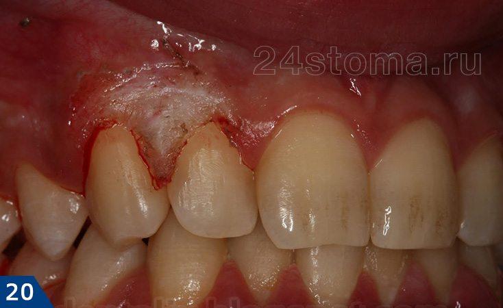 歯肉切除術を生み出した(歯茎の過剰部分の除去)