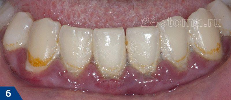 Gingivitis catarrhal مزمن (شفافیت و ادم لبه لبه لبه، در گردن دندان - خوشه های یک پلاک میکروبی نرم)