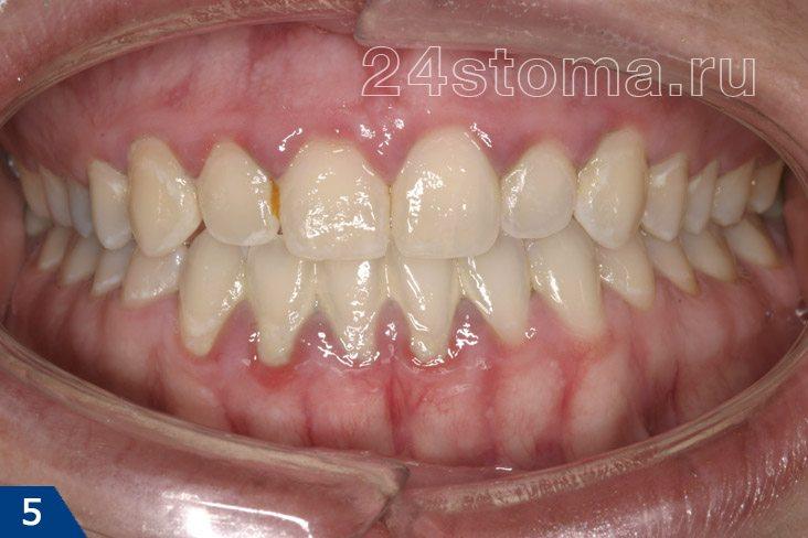 Хронический гингивит (отмечается резкая синюшностьт и отечность десны, поддесневые зубные отложения)