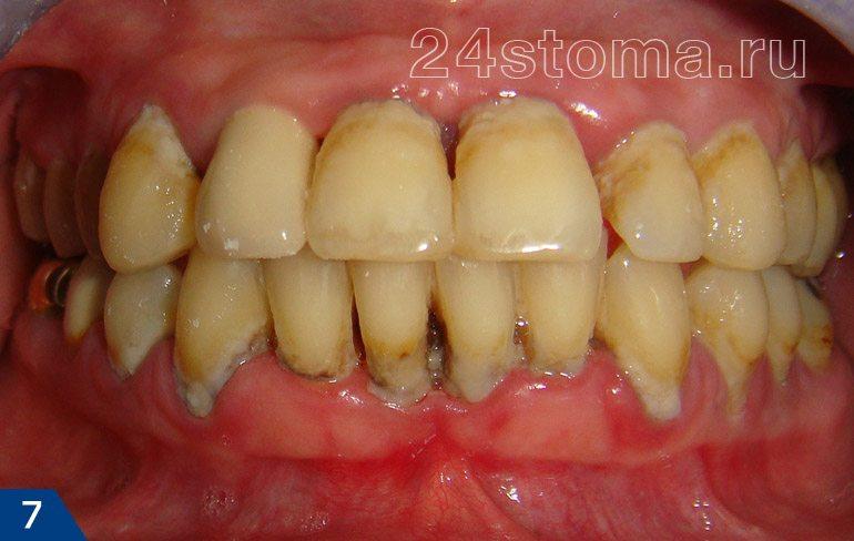 Хронический пародонтит (скопления мягкого микробного налета, над и поддесневыз зубных отложений, атрофия десны...)