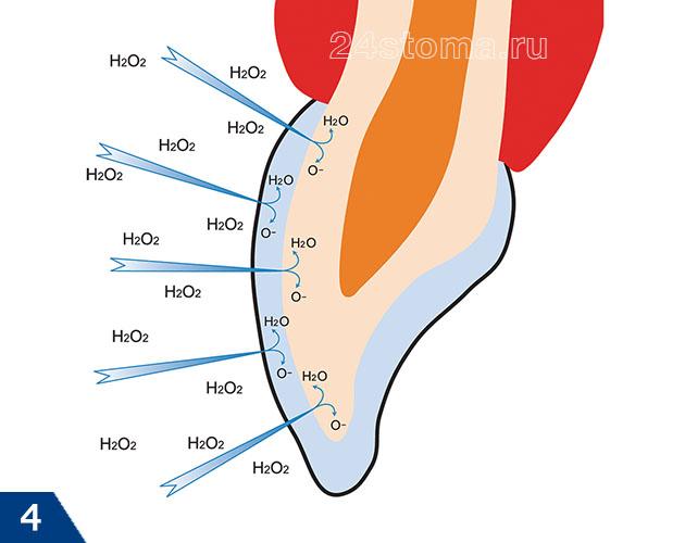 Как выглядит процесс отбеливания зубов на химическом уровне (пероксид водорода H2O2 распадается на воду H2O и атомарный кислород O-)