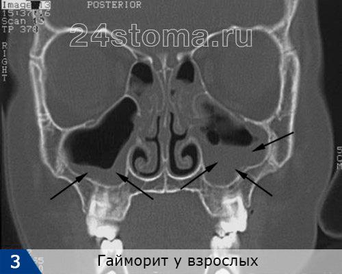 Двухсторонний гайморит. В пазухе слева резко утолщена слизистая оболочка, в пазухе справа - отчетливо видно, что пазуха на половину заполнена гноем и/или полипами.