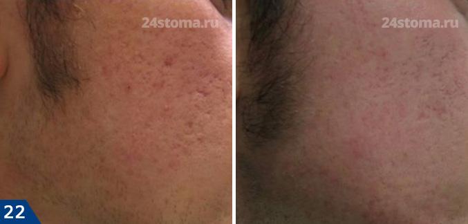 Mezoroller: Fotó előtt és után