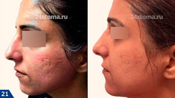 Fotó előtt és után a frakcionált mesoterápiás dermapin készülékek