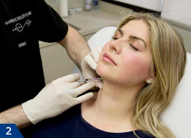L'operazione del chirurgo plastico inizia con una piccola incisione sotto il mento. Il suo compito è quello di tirare il muscolo al centro e fissare nella nuova posizione per ottenere un nuovo e bel contorno. Se il grasso è nell'area del mento, la rimozione del secondo mento è accompagnata dalla liposuzione laser.