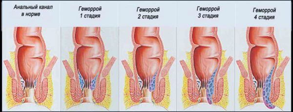 Hemoroidy zanícené