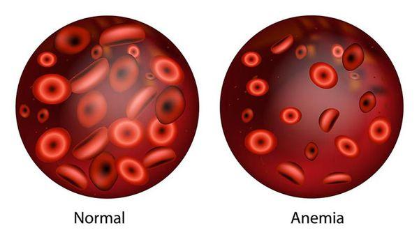 anemia celulară de seceră și pierderea în greutate)