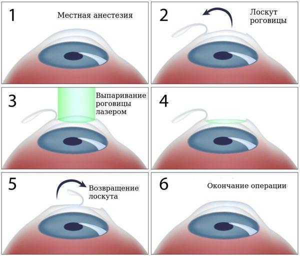 látás asztigmatizmusa 18 éves hogyan lehet kialakítani a mélylátást