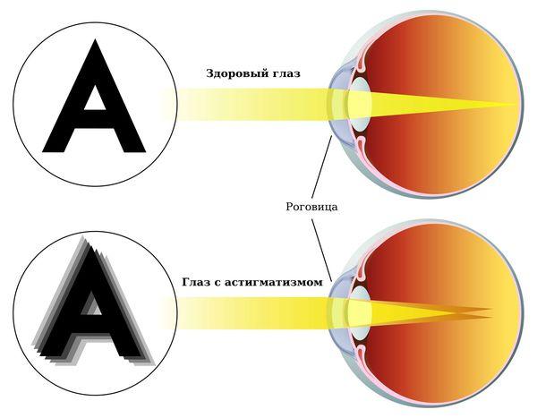 látás asztigmatizmus