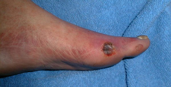Stages of development of diabetic foot syndrome