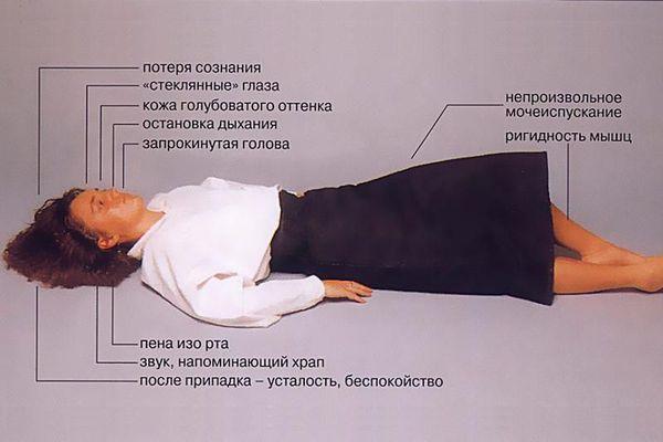 Simptomele epilepsiei