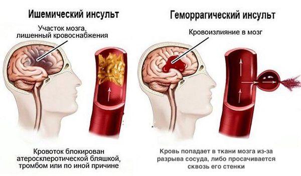 Тамырлы деменцияның белгілері