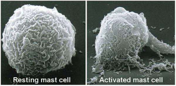 Attivazione di cellule obese