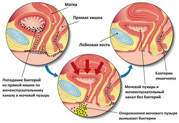 Kanefron n prosztatitisben Krónikus prostatitis ultrahangjelek