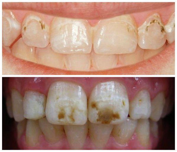 Dentina-kleuring na bloeding in de pulp