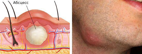 Linfadenitis del cuello (inflamación de los ganglios linfáticos)