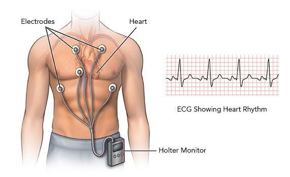 Kardiogram av nonsens takykardi