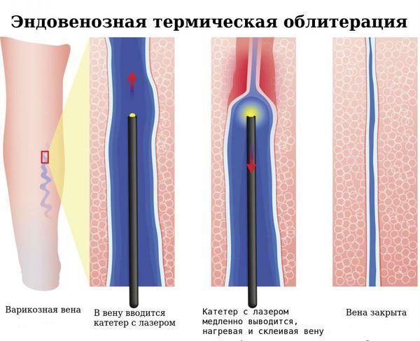 Varicele simptome și tratamentul fotografic - Simptome