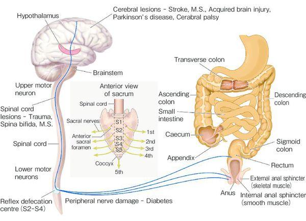 Neurogen etiologi forstoppelse