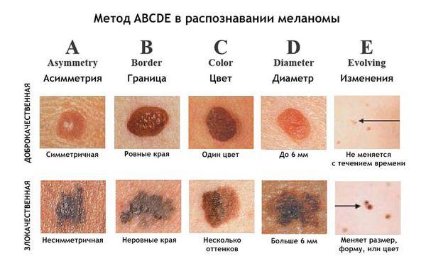 Меланома белгілері