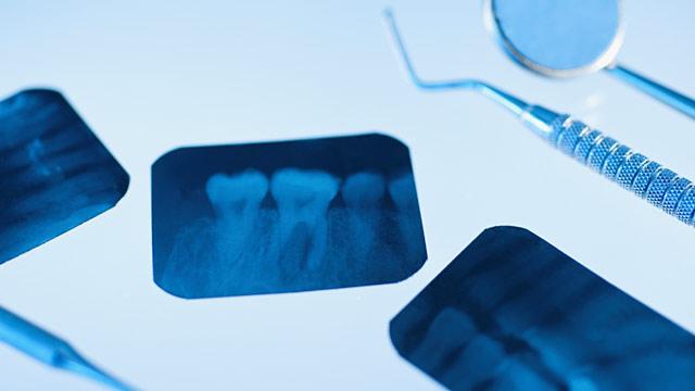 Brain Tumors Dental X Rays Abc News