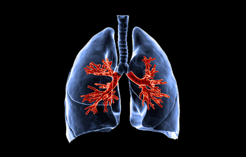 Cystic Fibrosis Lung Healthy Lung