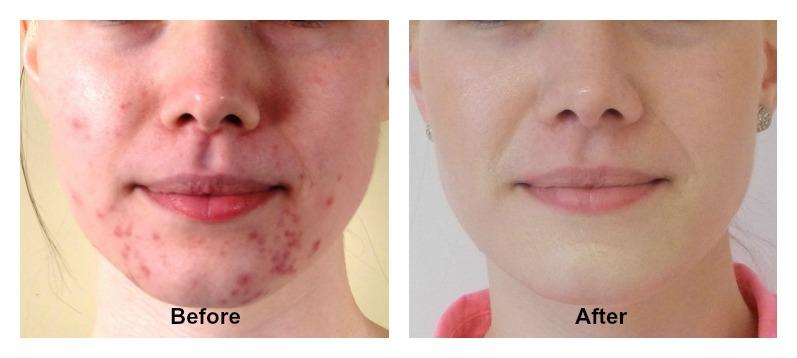 Face Results Cream Fresh
